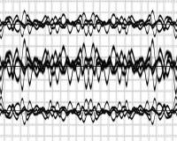 Κύματα εγκεφάλου ελεύθερη απεικόνιση δικαιώματος