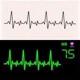 Κύματα καρδιογραφημάτων καρδιών σε χαρτί γραφικών παραστάσεων και στο όργανο ελέγχου επίσης corel σύρετε το διάνυσμα απεικόνισης Στοκ Εικόνες
