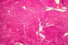 Κύτταρα παγκρεάτων κάτω από το μικροσκόπιο στοκ φωτογραφία με δικαίωμα ελεύθερης χρήσης