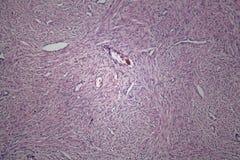 Κύτταρα του ανθρώπινου ιστού μητρών με τα μη επιβλαβή κύτταρα όγκων Στοκ φωτογραφία με δικαίωμα ελεύθερης χρήσης