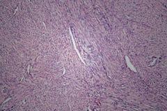 Κύτταρα του ανθρώπινου ιστού μητρών με τα μη επιβλαβή κύτταρα όγκων Στοκ Εικόνες
