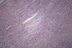 Κύτταρα του ανθρώπινου ιστού μητρών με τα μη επιβλαβή κύτταρα όγκων Στοκ Φωτογραφίες