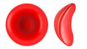 Κύτταρο δρεπανιών και κανονική κόκκινη απεικόνιση κυττάρων αίματος Στοκ Φωτογραφία