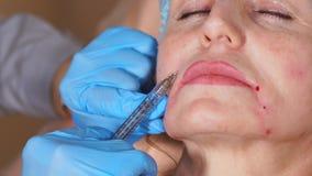Κλείστε αυξημένος της διαδικασίας Botox στις ομαλές έξω του προσώπου ρυτίδες απόθεμα βίντεο