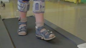 Κλείστε επάνω την άποψη των μικρών ποδιών αγοριών treadmill στην ειδική ορθοπεδική ένδυση επιδέσμων και ποδιών απόθεμα βίντεο