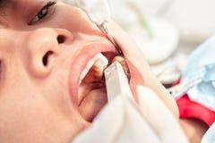 Κλείστε επάνω την εξέταση δοντιών Στοκ φωτογραφία με δικαίωμα ελεύθερης χρήσης