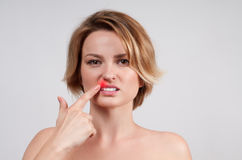 Κλείστε επάνω των θηλυκών χειλιών που επηρεάζονται από τον ιό έρπη στοκ φωτογραφία
