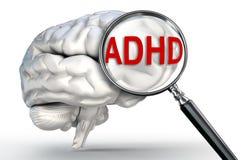 Λέξη Adhd στην ενίσχυση - γυαλί και ανθρώπινος εγκέφαλος Στοκ εικόνες με δικαίωμα ελεύθερης χρήσης