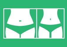 Λίπος και λεπτός αριθμός γυναικών, πριν και μετά από την απώλεια βάρους Θηλυκή σκιαγραφία σωμάτων Μέση γυναικών, απώλεια βάρους,  διανυσματική απεικόνιση