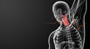 Λαιμός πόνου Στοκ φωτογραφία με δικαίωμα ελεύθερης χρήσης
