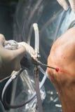 Λειτουργία νοσοκομείων χειρουργικών επεμβάσεων γονάτων Στοκ εικόνες με δικαίωμα ελεύθερης χρήσης