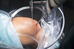 Λειτουργία νοσοκομείων χειρουργικών επεμβάσεων γονάτων Στοκ Φωτογραφία