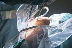 Λειτουργία νοσοκομείων χειρουργικών επεμβάσεων γονάτων Στοκ φωτογραφίες με δικαίωμα ελεύθερης χρήσης