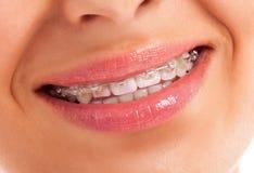 Λεπτομέρειες των δοντιών στοκ εικόνες με δικαίωμα ελεύθερης χρήσης