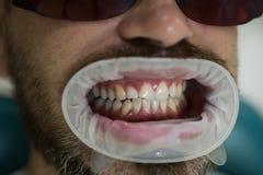 Λεύκανση των δοντιών στην κλινική οδοντιάτρων Διαχειριστείτε τα αναισθητικά για να κρατήσετε τους ασθενείς από το αίσθημα του πόν στοκ φωτογραφία