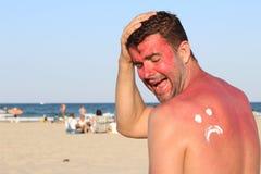 Λυπημένο πρόσωπο πέρα από το μαυρισμένο από τον ήλιο δέρμα Στοκ Φωτογραφίες