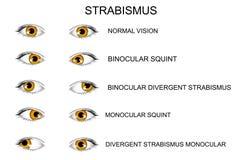 μάτια τύποι στραβισμών διανυσματική απεικόνιση
