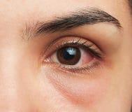 Μάτι με τη μόλυνση στοκ φωτογραφία