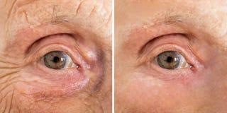 Μάτι της ανώτερης γυναίκας με και χωρίς ρυτίδες στοκ εικόνα με δικαίωμα ελεύθερης χρήσης