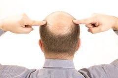 Μέσης ηλικίας ενδιαφερόμενο άτομο με alopecia φαλάκρας απώλειας τρίχας κοντά επάνω το άσπρο υπόβαθρο στοκ εικόνα