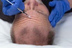 Μέσο ηλικίας καυκάσιο άτομο που παίρνει μια επεξεργασία ρυτίδων στο μέτωπο στοκ εικόνα