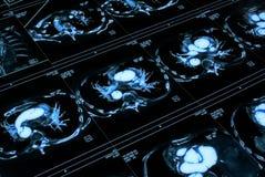 μαγνητική μεσομέρεια εικόνας Στοκ Εικόνες