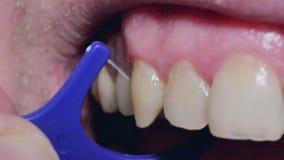 Μακροεντολή των οδοντικών δοντιών που καθαρίζουν τη διαδικασία με το νήμα φιλμ μικρού μήκους