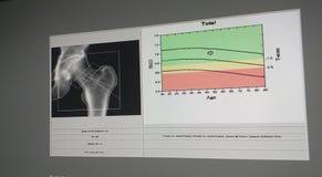 Μαλακή και μουτζουρωμένη εικόνα: ειδική πυκνότητα κόκκαλων ισχίων εικόνας εξέτασης ιατρική στο άσπρο υπόβαθρο r στοκ φωτογραφία με δικαίωμα ελεύθερης χρήσης