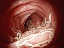 Μεγάλο roundworm στα ανθρώπινα έντερα στοκ εικόνες