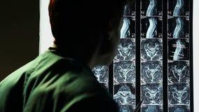 Μελέτη της νωτιαίας ανίχνευσης MRI, ακτίνα X σπονδυλικών στηλών, γιατρός που κάνει μια διάγνωση φιλμ μικρού μήκους