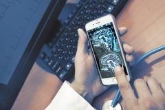 Μελέτη MRI του υπομονετικού εγκεφάλου στο smartphone γιατρών ` s, διαθέσιμη Στοκ Εικόνες