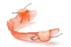 Μετακινούμενη μερική οδοντοστοιχία που απομονώνεται στο άσπρο υπόβαθρο στοκ εικόνα