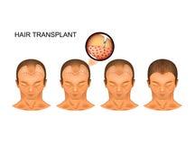 Μεταμόσχευση τρίχας διαδικασίας του ινιακού μέρους του κεφαλιού ελεύθερη απεικόνιση δικαιώματος