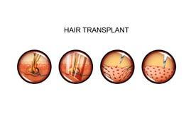 Μεταμόσχευση τρίχας κεφάλι διανυσματική απεικόνιση