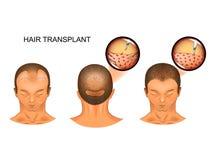 Μεταμόσχευση τρίχας του ινιακού μέρους του κεφαλιού απεικόνιση αποθεμάτων