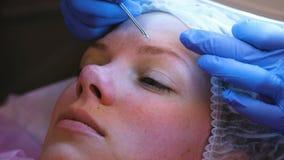 Μηχανικός καθαρισμός του προσώπου στο beautician Το Cosmetologist συμπιέζει την ακμή στο μέτωπο του ασθενή με φιλμ μικρού μήκους