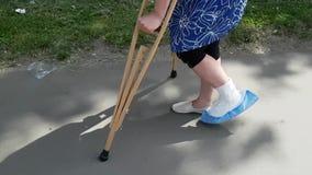 Μια γυναίκα με το υπερβολικό βάρος είναι σε ένα πόδι και στα δεκανίκια Το δεύτερο πόδι είναι σπασμένο Το ασβεστοκονίαμα καθορίζετ απόθεμα βίντεο