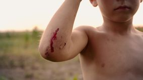 Μια μικρή φρέσκια γρατσουνιά σε ετοιμότητα παιδιών ` s, ένα τραύμα στον αγκώνα αγοριών ` s μετά από την πτώση, αίμα σε ετοιμότητα φιλμ μικρού μήκους