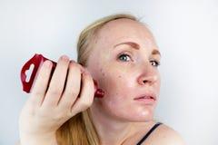 Μια νέα γυναίκα βάζει μια μάσκα πηκτωμάτων στο πρόσωπό της Προσοχή για το ελαιούχο, δέρμα προβλήματος στοκ εικόνα