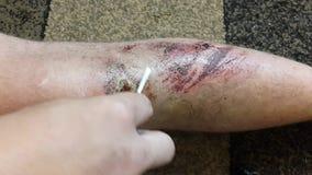 Μια πληγή στο πόδι ενός ατόμου βοηθήστε πρώτα απόθεμα βίντεο