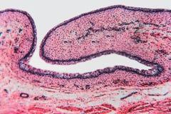 Μικροσκοπική γάτα κύστεων κυττάρων στοκ φωτογραφίες με δικαίωμα ελεύθερης χρήσης