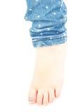 Μικρό κορίτσι με ένα μπλε καρφί στο toe hallux Στοκ φωτογραφία με δικαίωμα ελεύθερης χρήσης