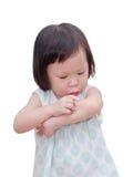 Μικρό κορίτσι με την πληγή δαγκωμάτων mosquitoe Στοκ Εικόνα