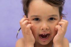 Μικρό κορίτσι με τη φλυκταινώδη νόσο κοτόπουλου που κακογράφει τις προσκρούσεις του στοκ εικόνες με δικαίωμα ελεύθερης χρήσης