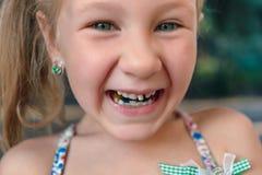 Μικρό κορίτσι με orthodontics τη συσκευή και το wobbly δόντι στοκ φωτογραφίες