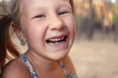 Μικρό κορίτσι με orthodontics τη συσκευή και το wobbly δόντι στοκ φωτογραφία με δικαίωμα ελεύθερης χρήσης