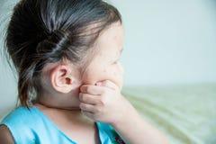 Μικρών κοριτσιών στο πρόσωπό της επειδή δαγκώματα εντόμων Στοκ φωτογραφία με δικαίωμα ελεύθερης χρήσης