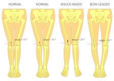 Μορφές των ποδιών Κανονικά και κυρτά πόδια Γόνατα κτύπου Υποκυμμένο πόδι Στοκ φωτογραφία με δικαίωμα ελεύθερης χρήσης