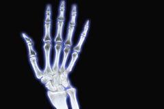 μπλε ακτίνα Χ χεριών Στοκ Εικόνα