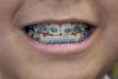μπλε στηρίγματα Στοκ εικόνα με δικαίωμα ελεύθερης χρήσης